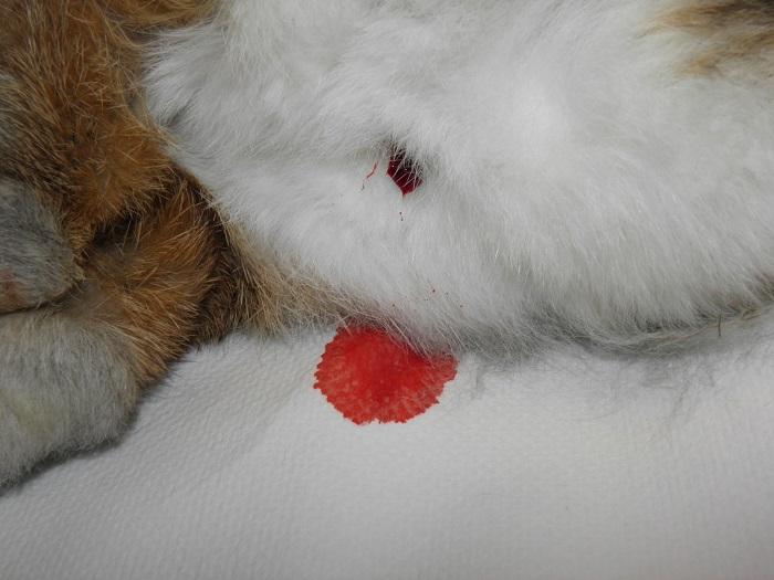 aneurisma venoso endometriale