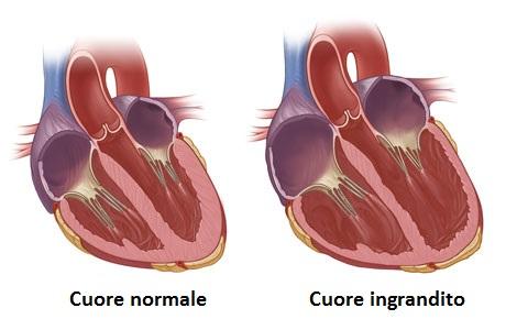 miocardiopatia dilatativa