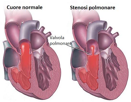 stenosi polmonare cane